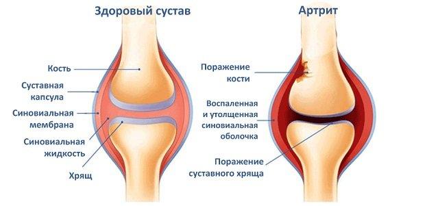 a könyökízület kenőcsének oldalsó epikondilitisz