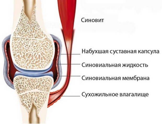 Könyök epikondilitisz
