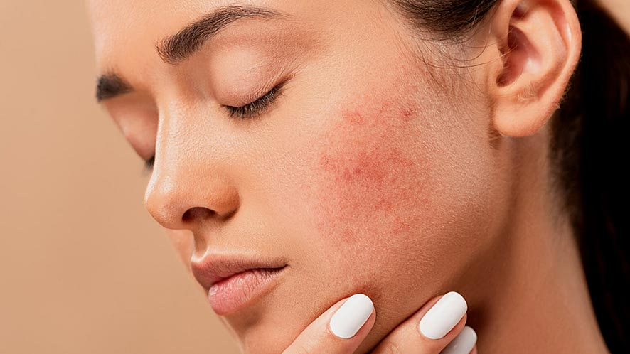 9 Easy Acne Scars Remedies And Treatment
