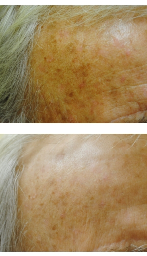 Men's Services Microneedling Before and After