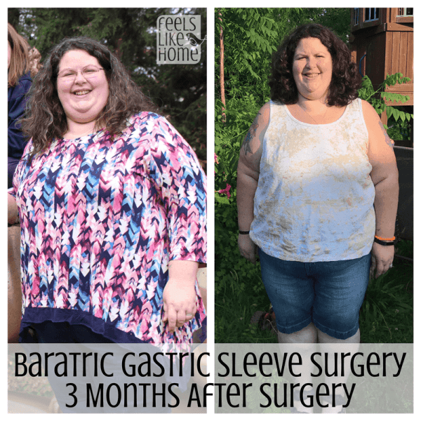 Bariatric gastric sleeve surgery results - This is an update 3 months after gastric sleeve surgery including before and after pictures (or is it before and during?) and an update on life after. She is losing weight quickly and eating a healthy diet that she can maintain for life!