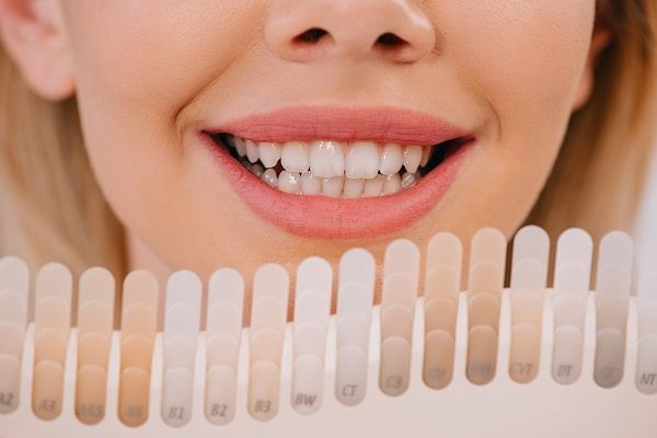 Best Rated At Home Teeth Whitening Kits