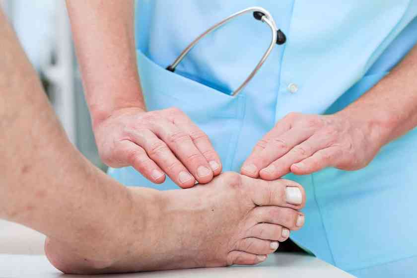 What is a Bunion - Bunion Treatment
