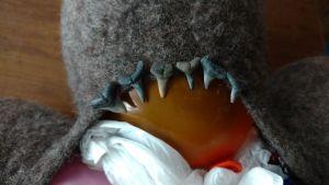 Q1 Challenge Teeth