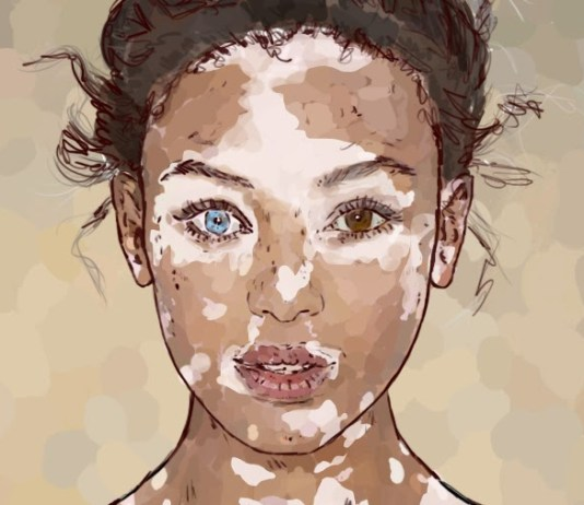 How South Asian Women With Vitiligo Have It Harder