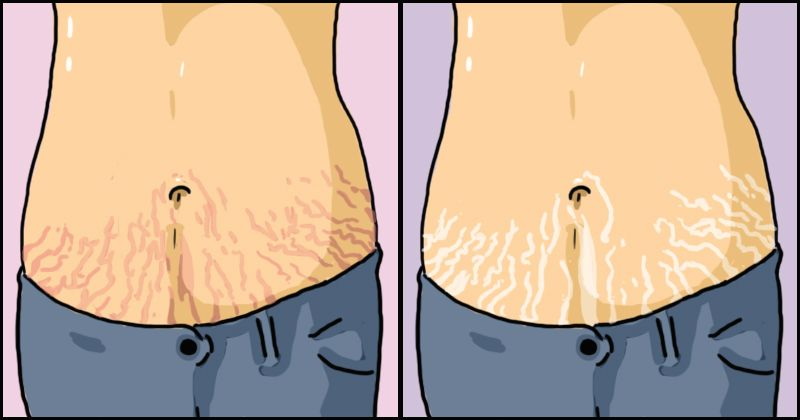 What People Don't Tell You About Stretch Marks And PCOS