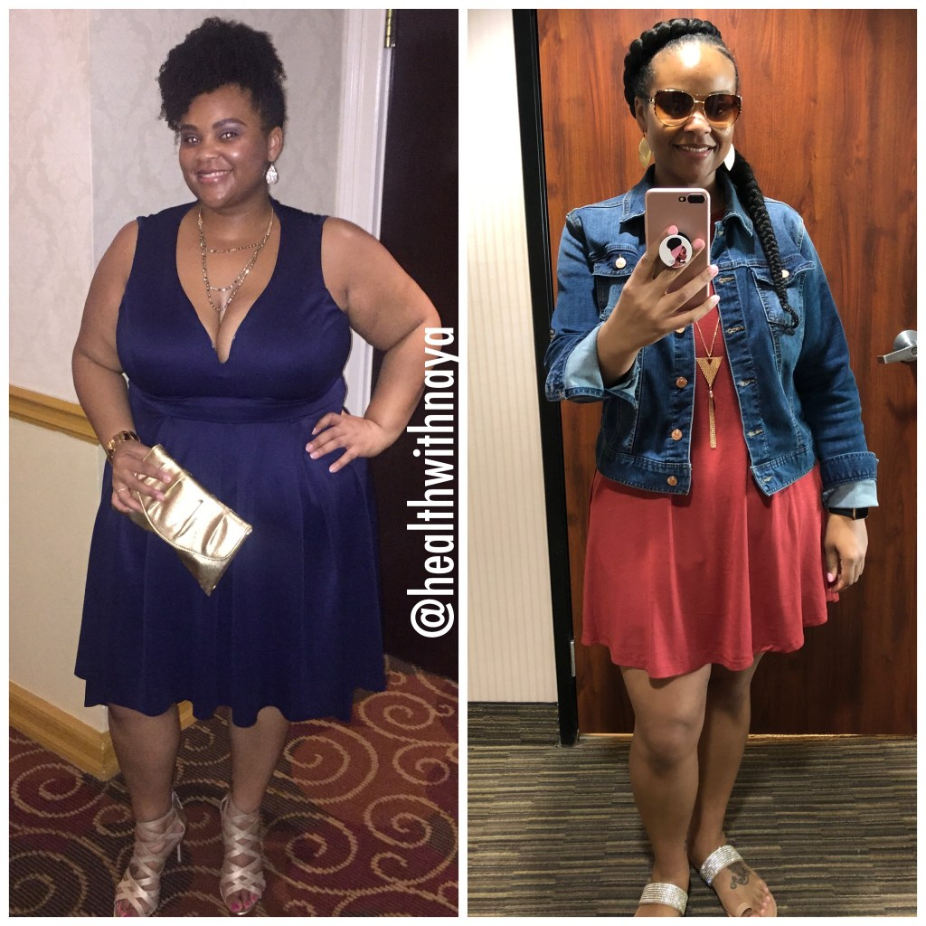 Sinaya Cotlong #weightlossbeforeandafter #weightlosstransformation #weightlosstips #blackwomenweightloss #weightlosssuccess