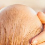 How To Prevent Flat Head Syndrome And Avoid the Baby Helmet