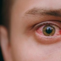 ¿Comezón y dolor de ojos, síntomas anticipados de COVID-19?