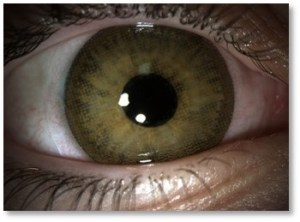 Eyeball. Courtesy of the photographer. Used with permission of the Vision Research Institute at Ferris State University