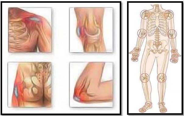 este posibil să încălziți articulația cu artroză