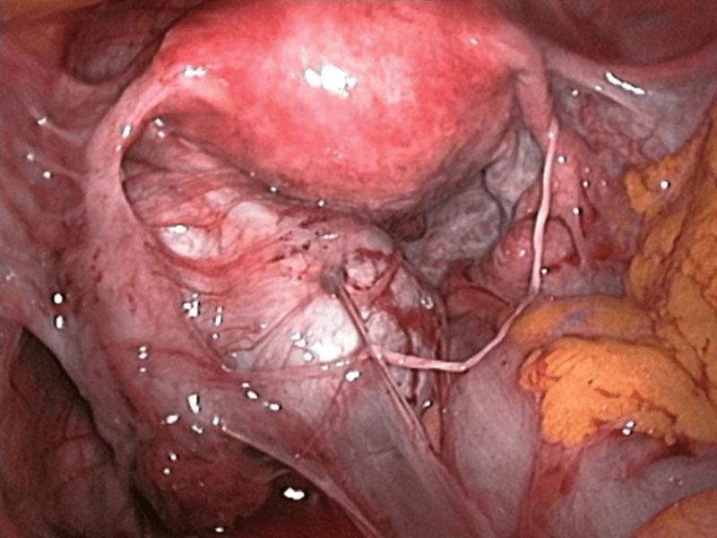 aderenze pelviche endometriosi