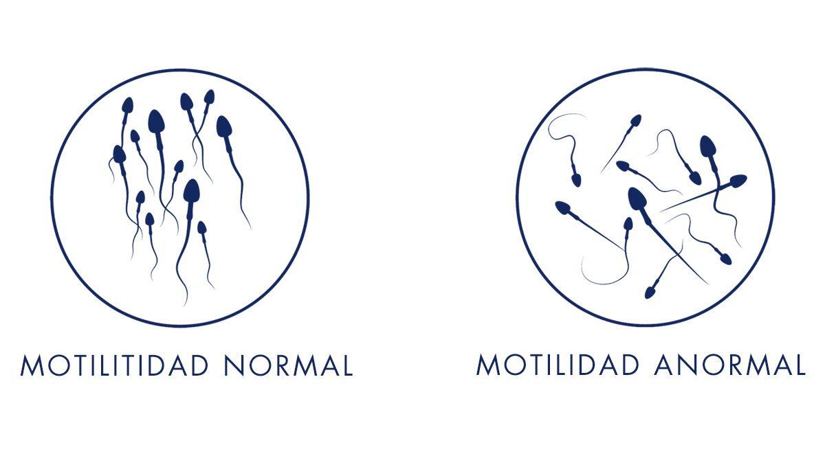 Motilidad en Espermatozoides