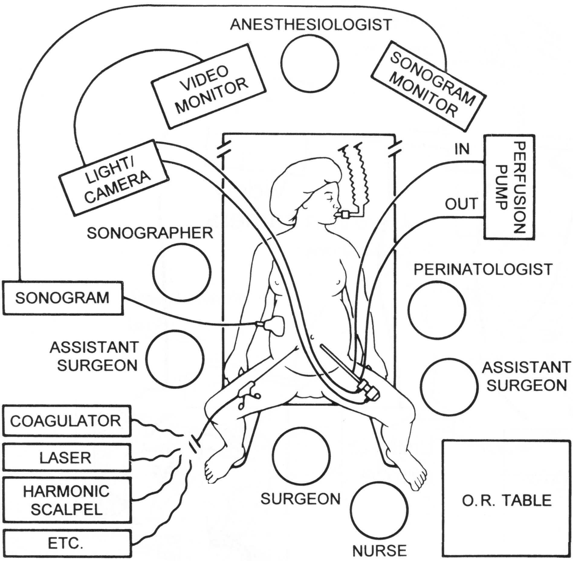 Techniques Of Fetal Intervention