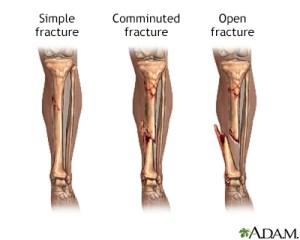 Bone fracture repair  series | Health Encyclopedia