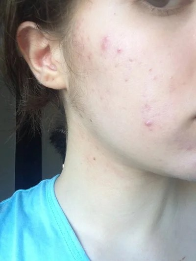Buy accutane next day delivery