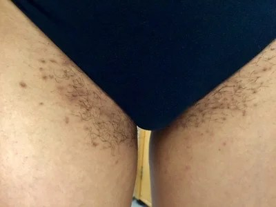 removing severe ingrown pubic hair scars and permanent hair removal which type what equipment