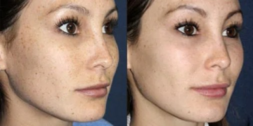 www.beautyandlaserclinic.com.au IPL Before and After Photos