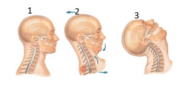 ¿Tienes Fibromialgia y te duele la mandíbula al movimiento? ¿Sufres, además, dolores de cabeza y cuello? Sigue leyendo.