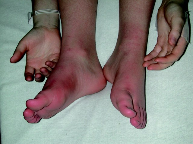 What is Small Fiber Neuropathy. Why This is Necessary For Fibromyalgia