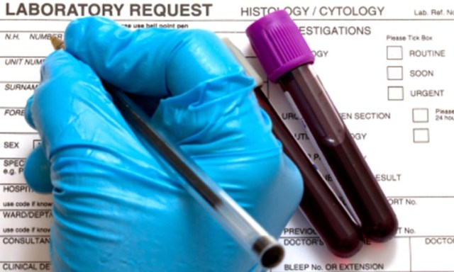 A Blood Test for Diagnosing Fibromyalgia?