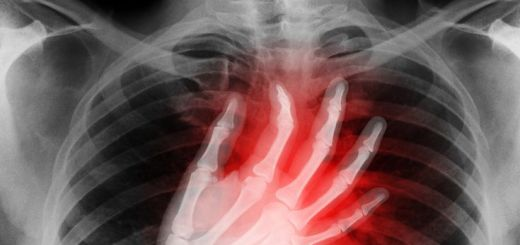 What is Costochondritis? Link Between Fibromyalgia and Costochondritis