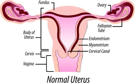 Fibroids and Hysterectomy