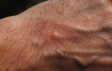 Fibromyalgia: Suffering With The Itch You Can't Scratch