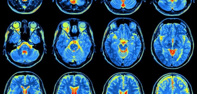 Brain Activity During Fast Motor Task is Impaired in Patients with Fibromyalgia, Study Suggests