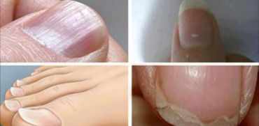 Common Nail Conditions Linked to Serious Diseases That You Shouldn't Ignore