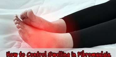 Control swelling in fibromyalgia