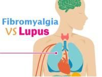 Fibromyalgia and Lupus