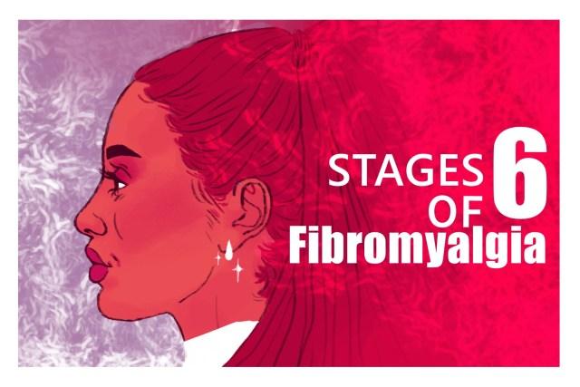 Stages of Fibromyalgia