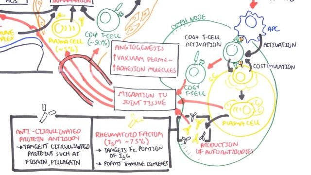 Rheumatoid Arthritis Pathophysiology diagram