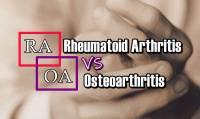 Rheumatoid Arthritis vs Osteoarthritis