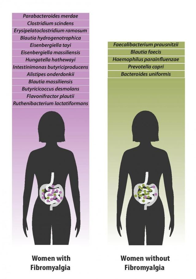 fibromyalgia and gut bacteria women