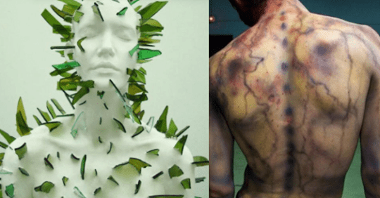16 Ways to Imagine What Fibromyalgia Disorder Feels Like