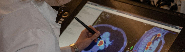 Kuvituskuva tutkijasta työssään. Tutkimustiedolla kehitämme syövänhoitoa entistäkin paremmaksi.