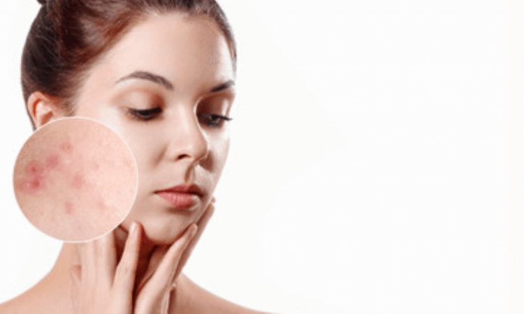 Acne guide: causes and treatment