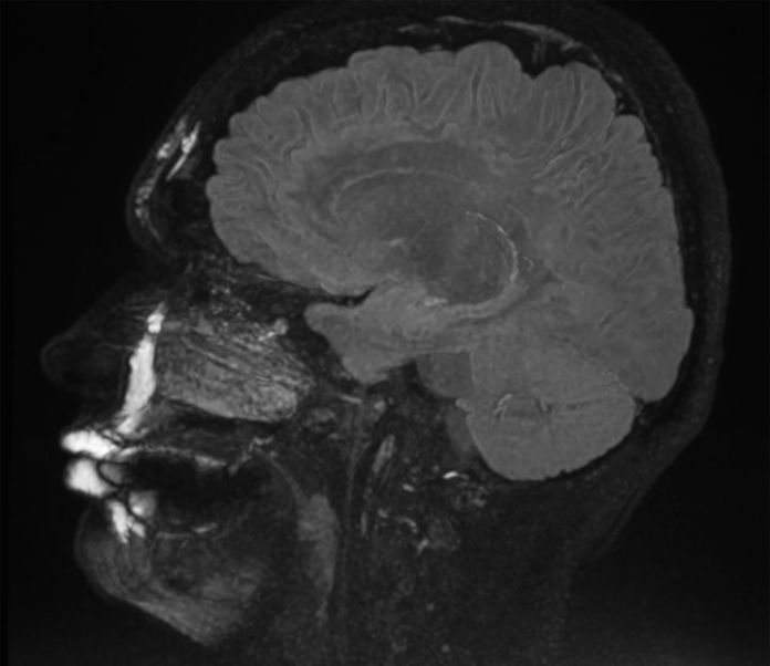 Yes, MRIs can show where filler has been injected in the face.