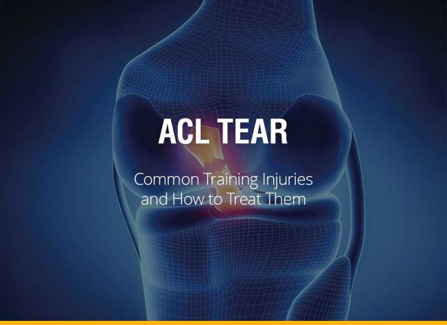Common Training Injuries and How To Treat Them - ACL Tear