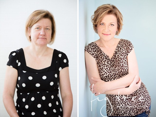 Before-After-Malgosia1