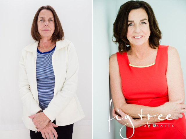 Before-After-Katie-and-mom1