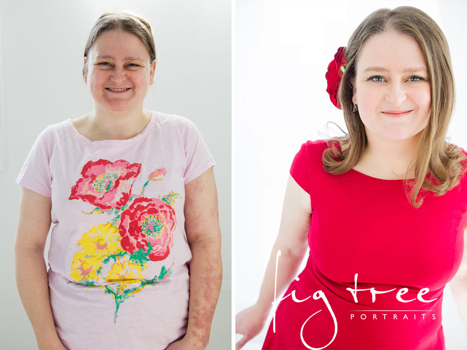Colleen Before-After