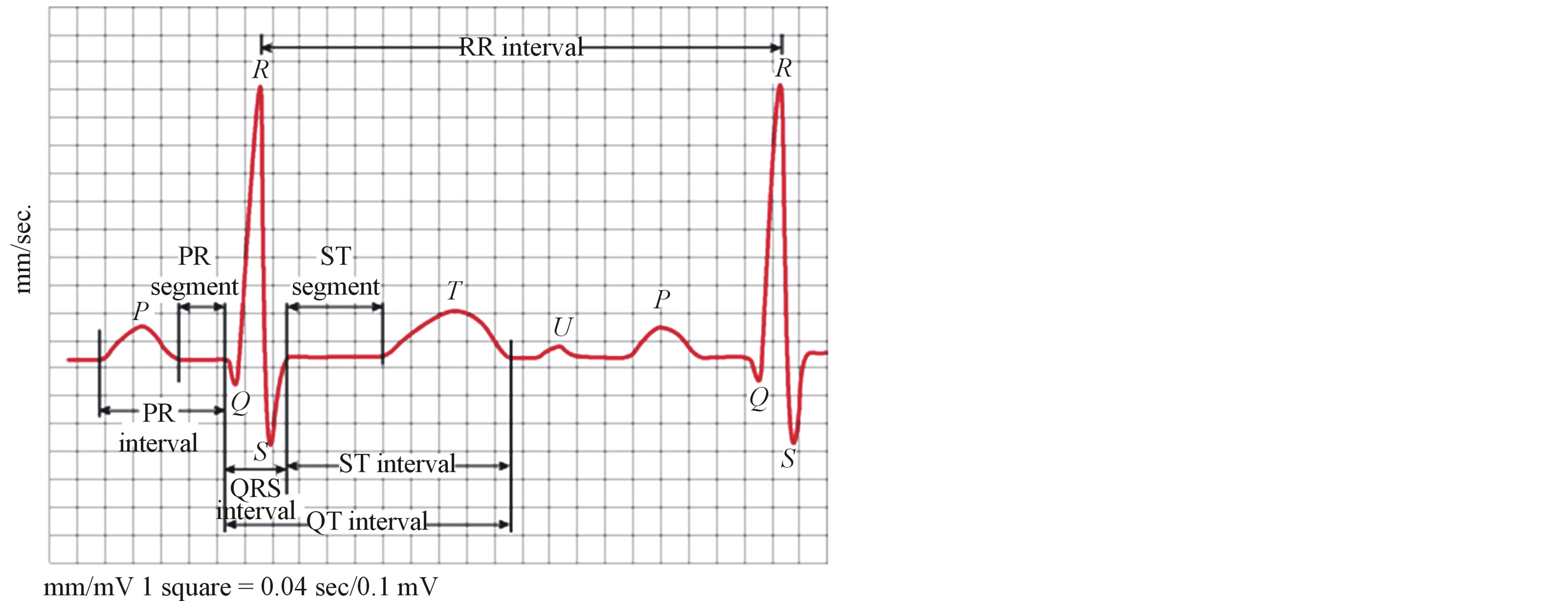 Compression Of Ecg Signals Based On Dwt And Exploiting The Correlation Between Ecg Signal Samples