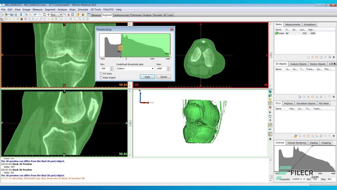 Scr5_Materialise-Mimics-Innovation-Suite_free-download
