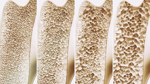 Osteoporose é doença que torna os ossos muito frágeis