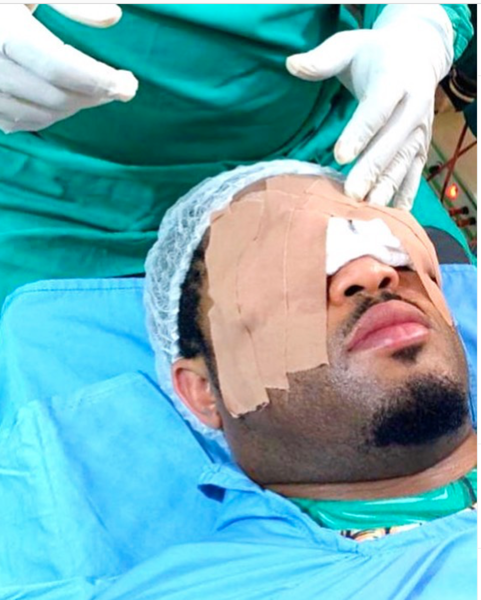 #Photo: Mike Ezuruonye undergoes eye surgery, shares scary experience