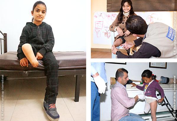 Handicap International e.V. hilft mit Prothesen