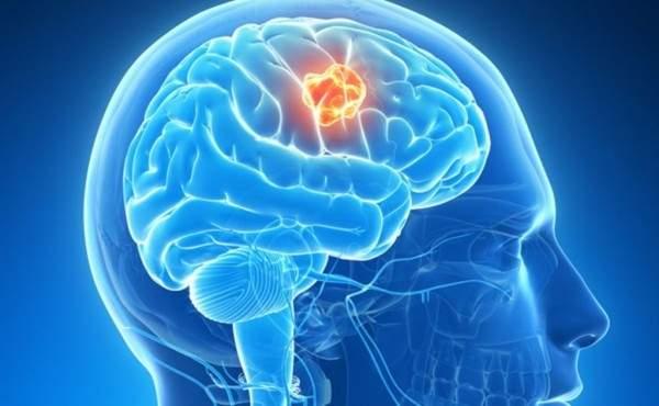 2. أورام الدماغ| فهرس
